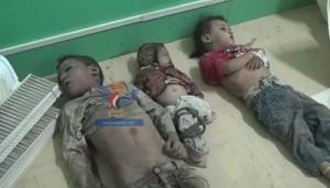 54 منظمة وشبكة وتحالف حقوقي من 12 دولة عربية تطالب بوقف فوري للعدوان السعودي على اليمن